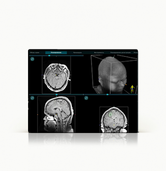 A software and hardware system for safe operations on the brain and spine, with a millimeter accuracy